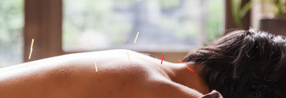 Acupuncture Treatment in Carlow.